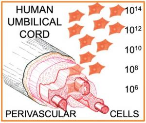 Applying bioprocess systems to TRT's core technology around human umbilical cord perivascular cells